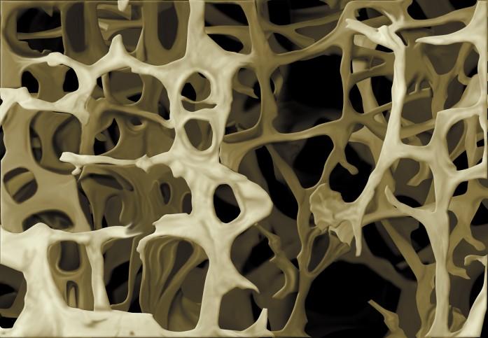 imagen-1b-pagina-262-estructura-hueso-osteoporotico